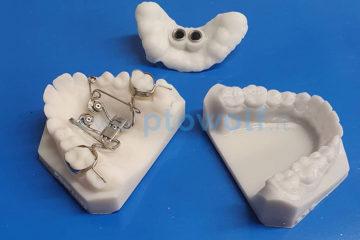 dispositivo-su-miniviti-espansore-del-palato-ed-intrusione-dei-molari-superiori