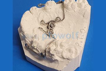 dispositivo-su-miniviti-per-estrusione-dei-canini-superiori-e-premolari