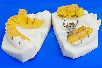 dispositivo-twin-block-su-modelli-3D-con-espansore-rapido