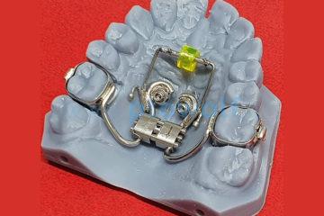 espansore-rapido-ibrido-su-miniviti-con-perla-di-tucat-ed-uncini-per-elastici